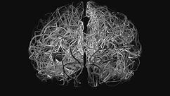 Brain-Wire3-1_Nik - sarshar dorosti.tif