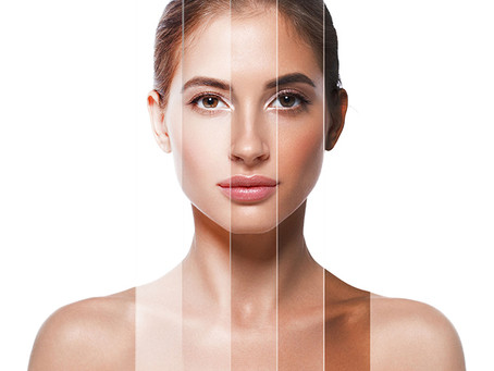 5 Facts about Pigmentation you should know