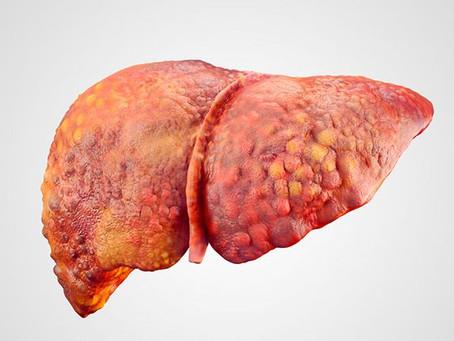 Dicas para Desintoxicar o Fígado