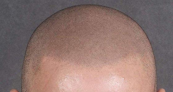 hairline-closeup.jpg