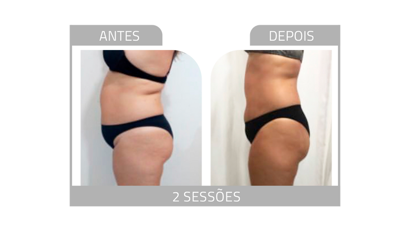 ANTES E DEPOIS LG 7.png