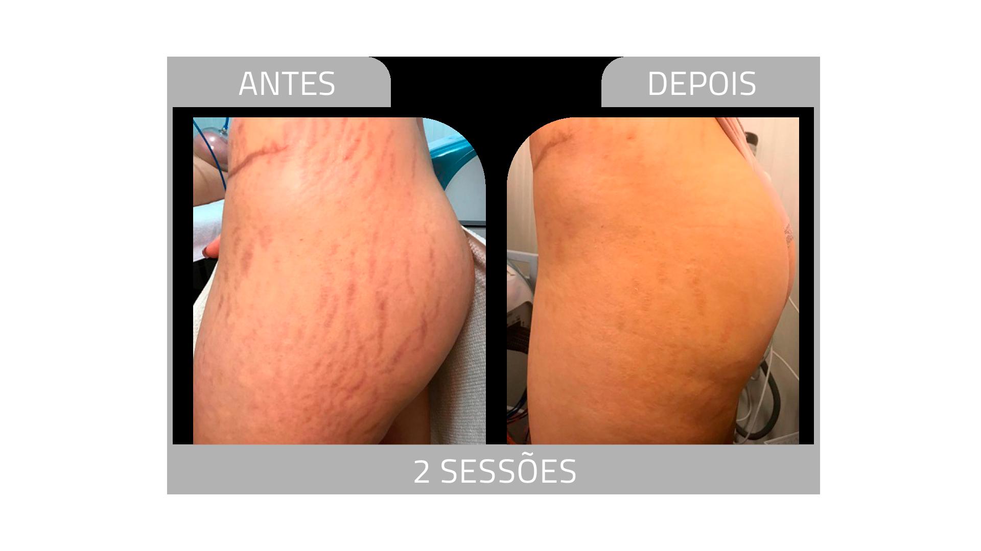 ANTES E DEPOIS STRIORT 9.png