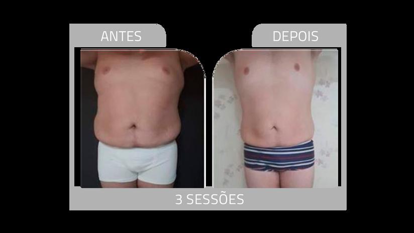 ANTES E DEPOIS LG 10.png