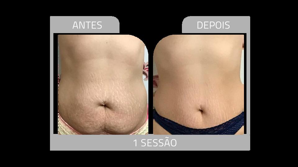 ANTES E DEPOIS STRIORT 11.png