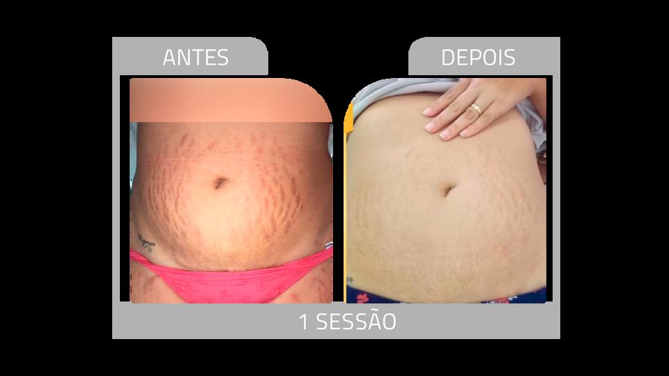 ANTES E DEPOIS STRIORT 3.png