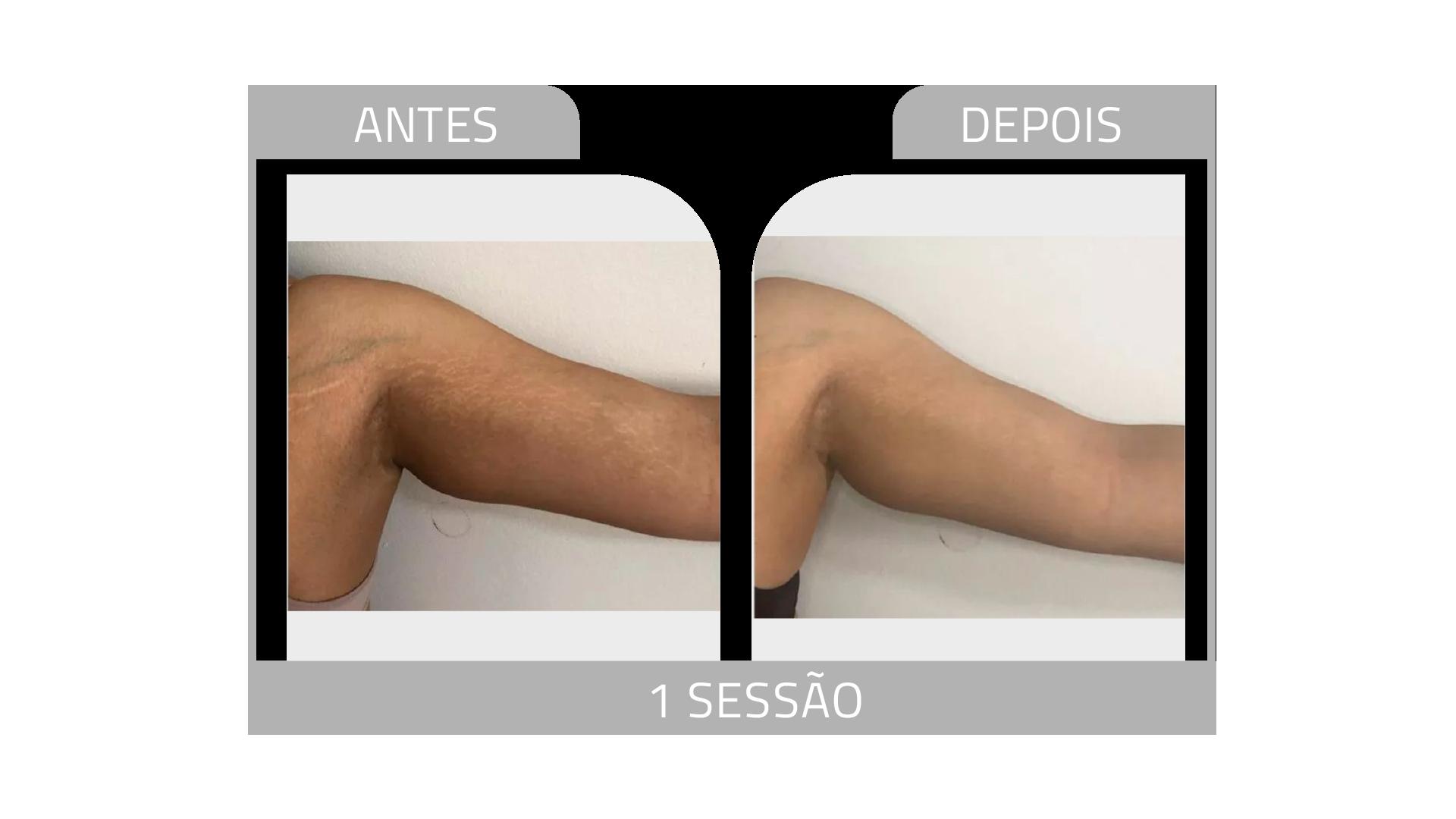 ANTES E DEPOIS STRIORT 18.png