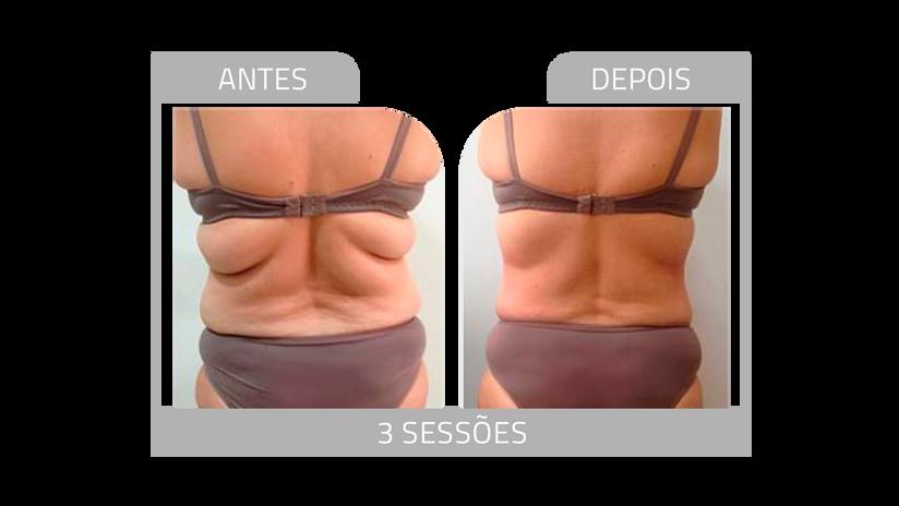 ANTES E DEPOIS LG 4.png