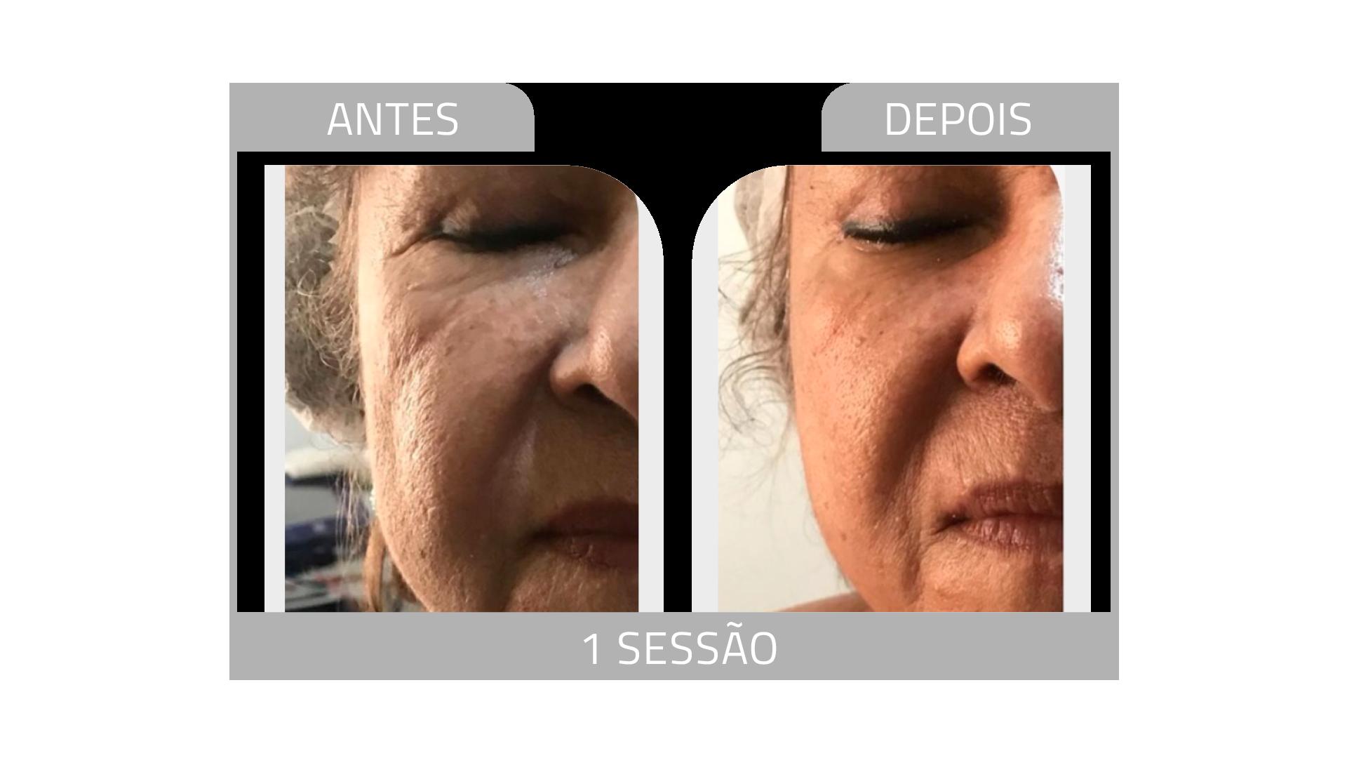 ANTES E DEPOIS FIRMEZ 8.png