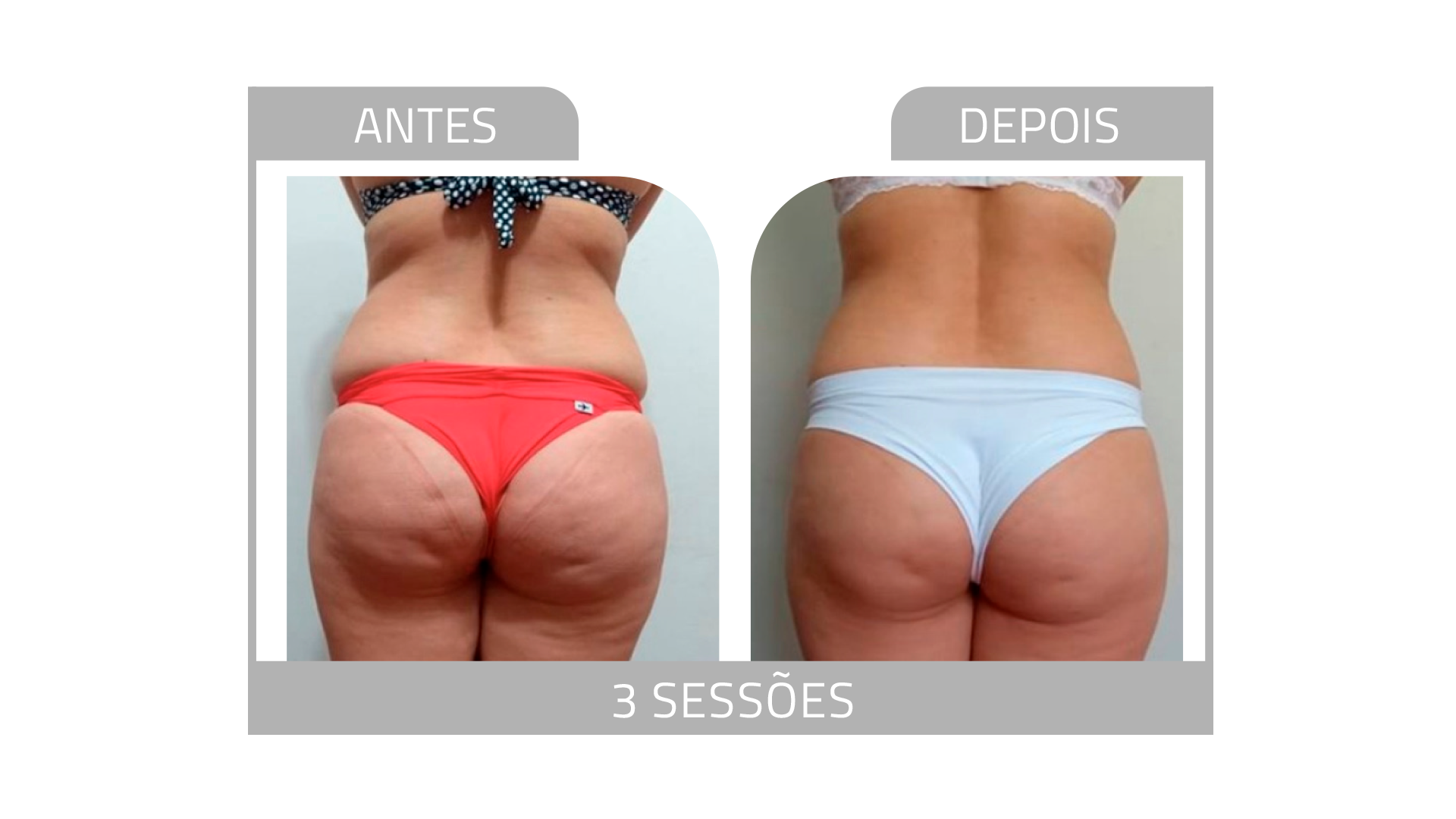 ANTES E DEPOIS LG 13.png