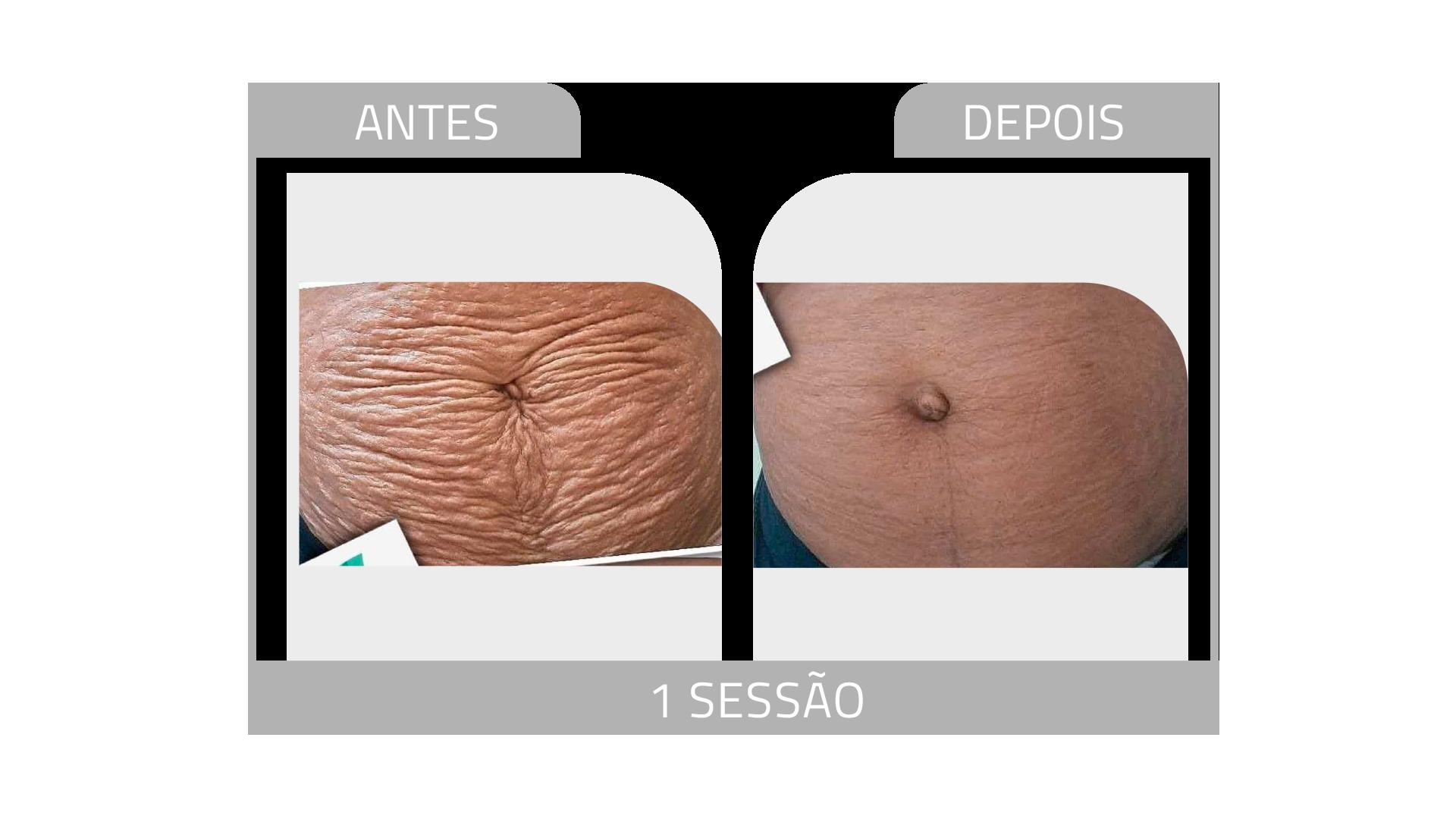 ANTES E DEPOIS STRIORT 13.png