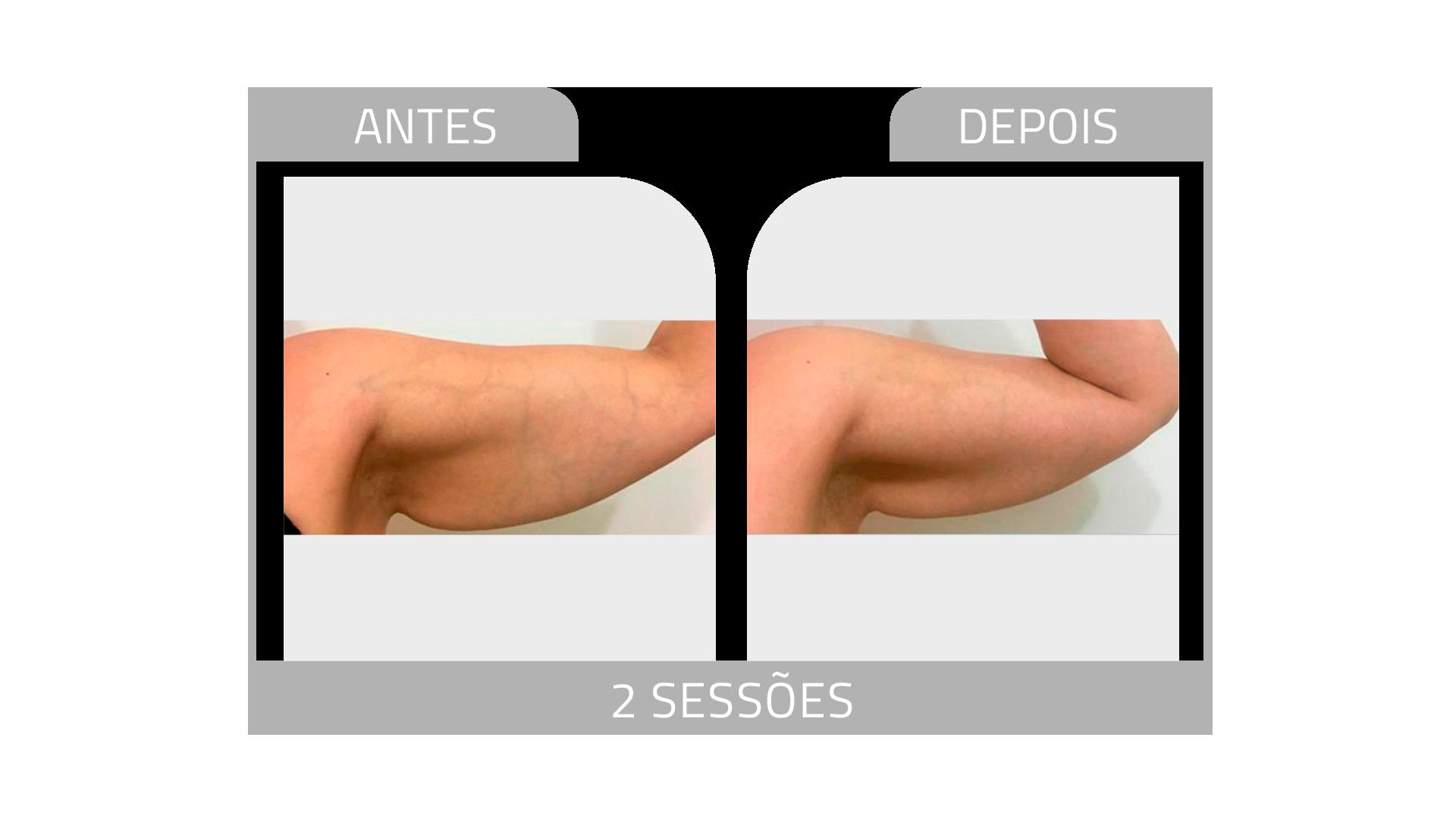 ANTES E DEPOIS FIRMEZ 1.png