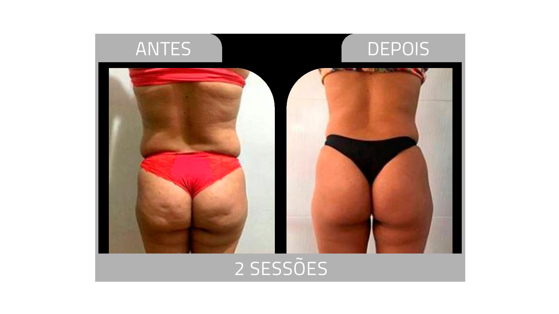 ANTES E DEPOIS LG 1.png