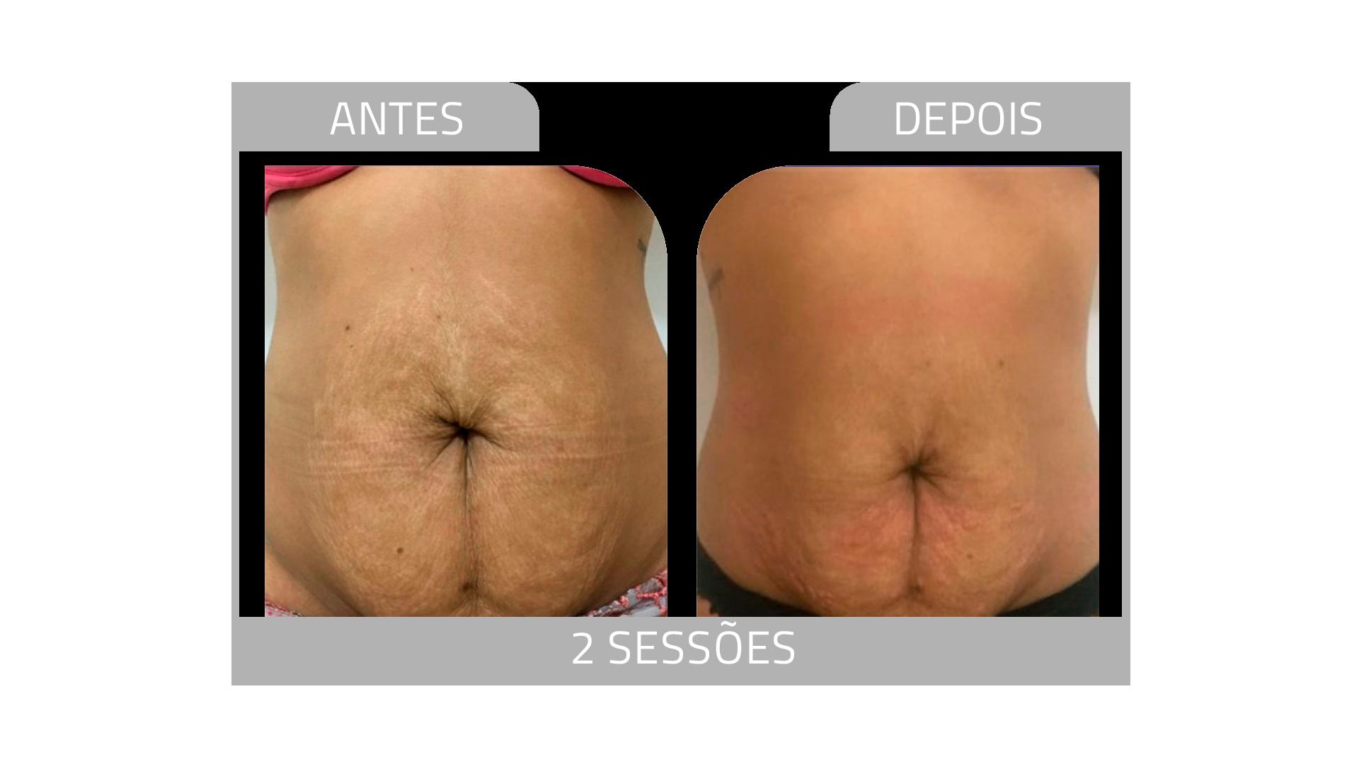 ANTES E DEPOIS FIRMEZ 2.png