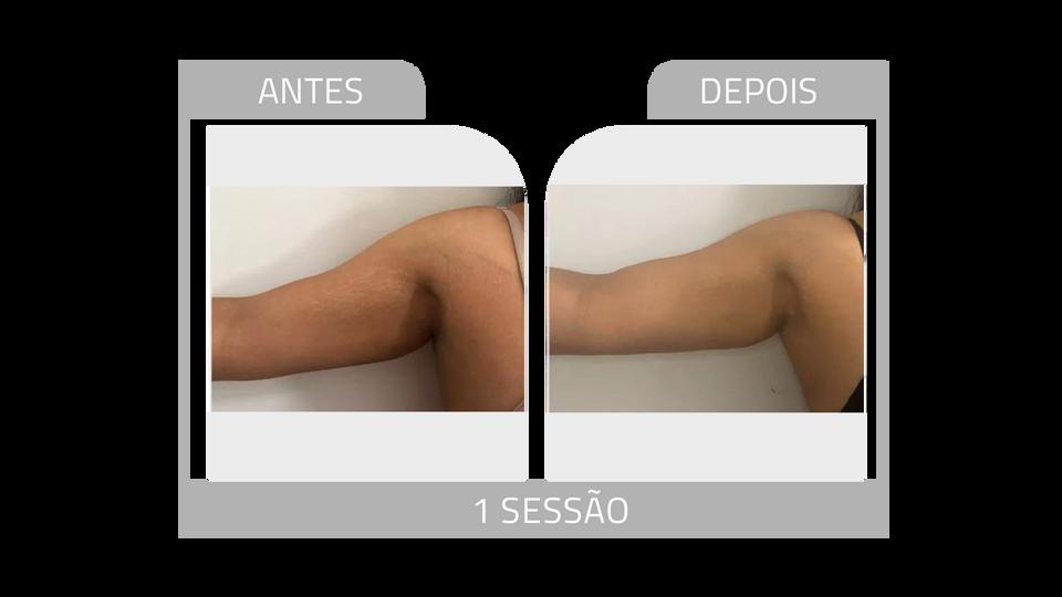 ANTES E DEPOIS STRIORT 19.png