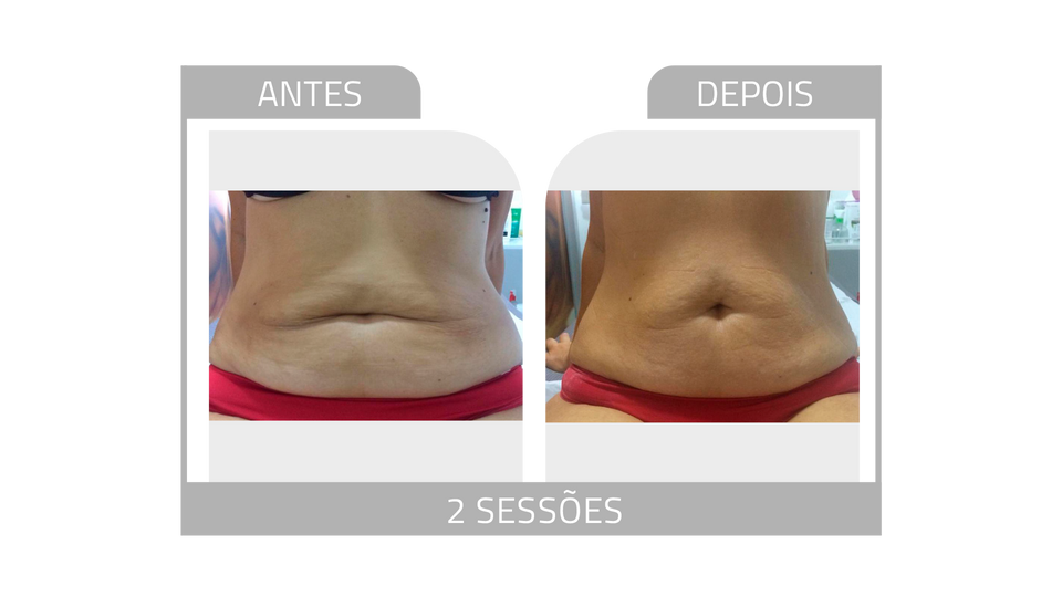 ANTES E DEPOIS FIRMEZ 4.png