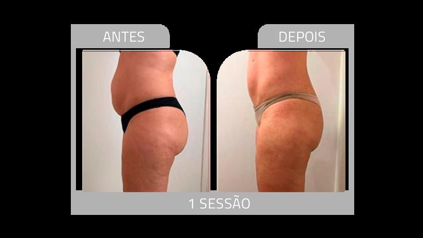 ANTES E DEPOIS LG 12.png