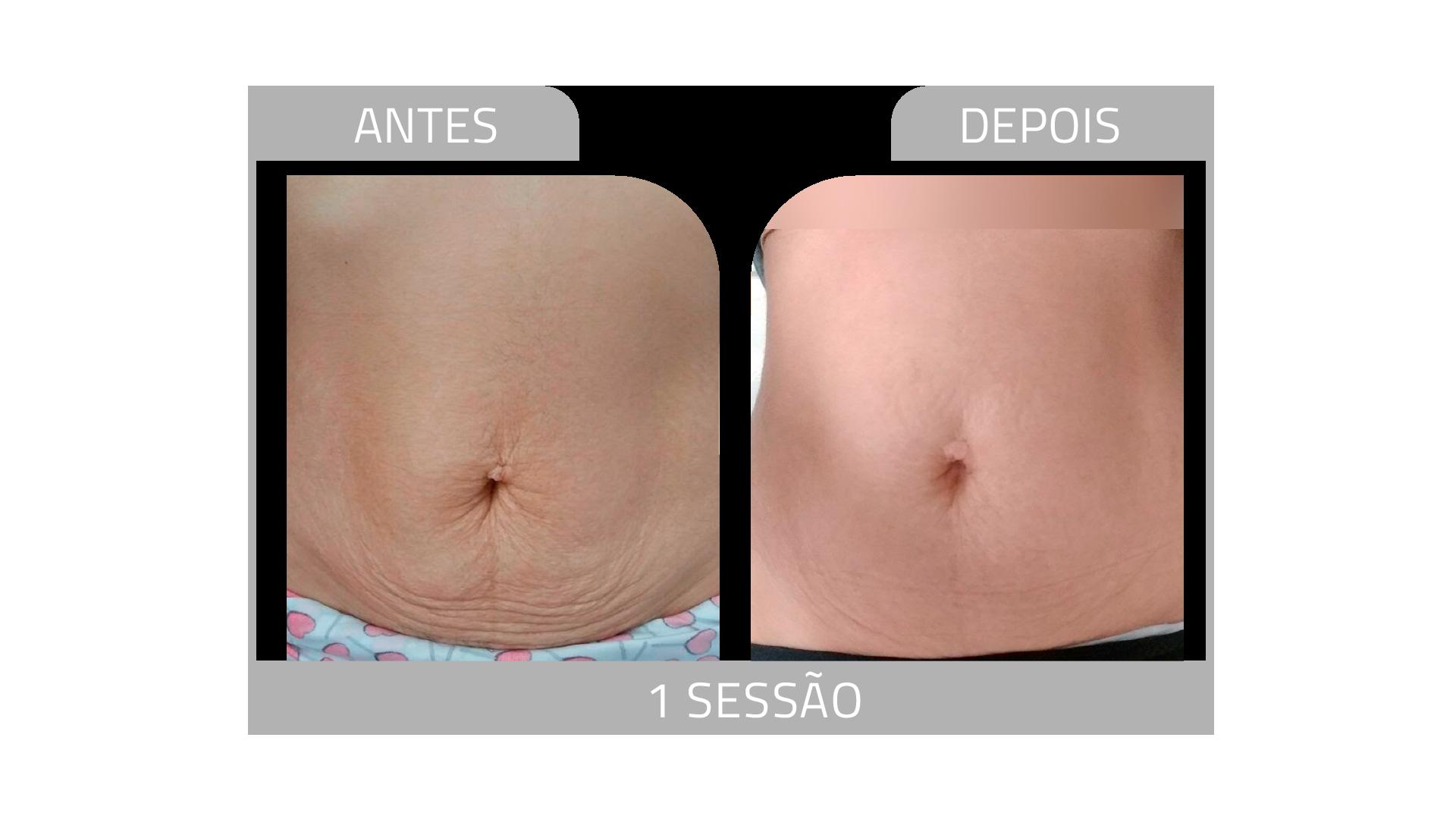 ANTES E DEPOIS STRIORT 7.png