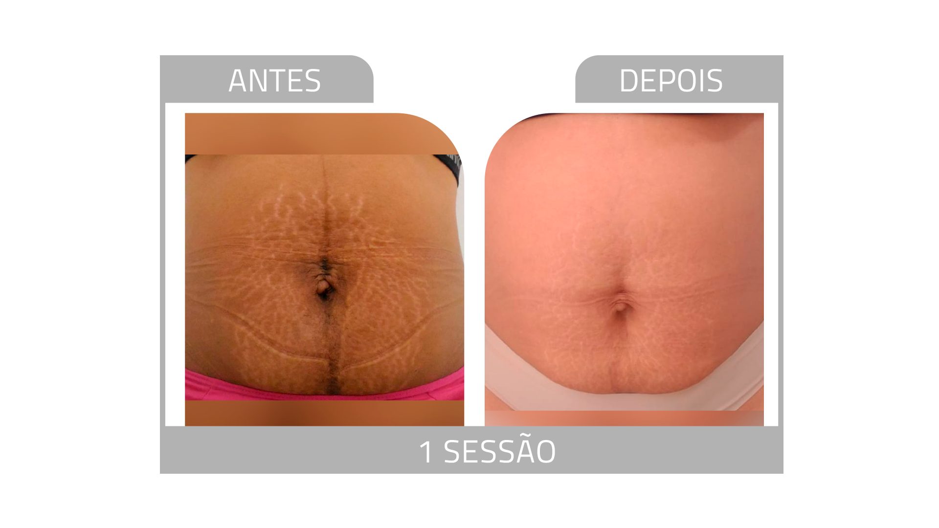 ANTES E DEPOIS STRIORT 5.png