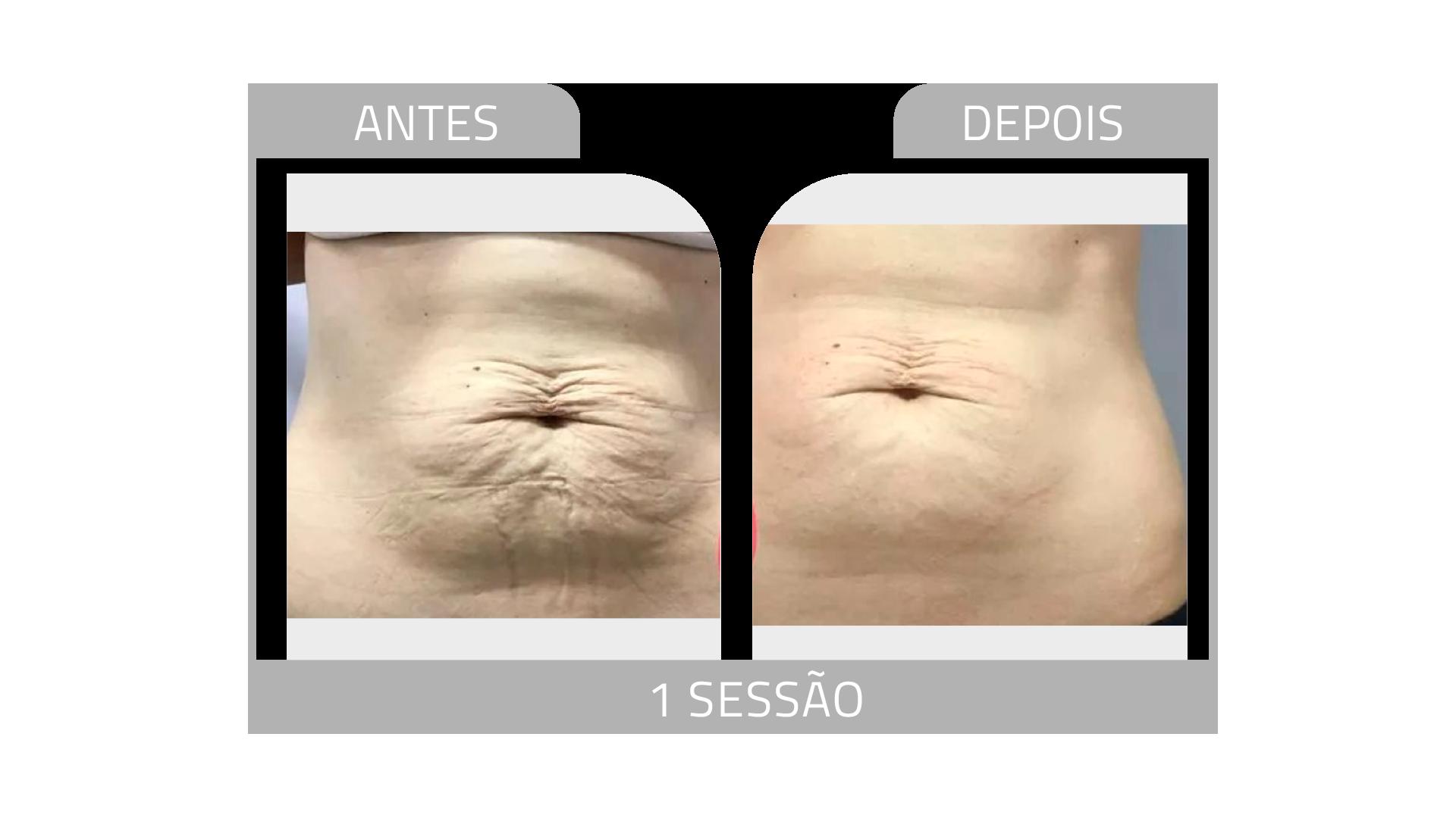 ANTES E DEPOIS STRIORT 16.png