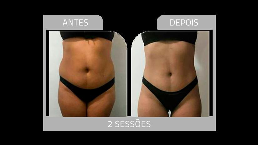 ANTES E DEPOIS LG 3.png