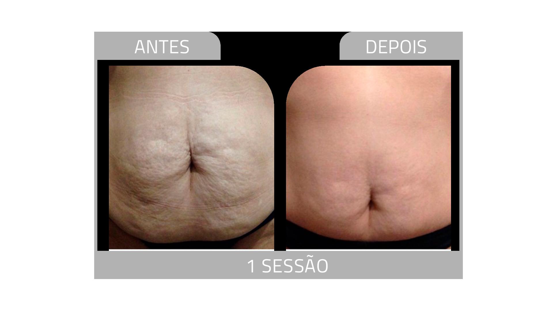ANTES E DEPOIS STRIORT 12.png