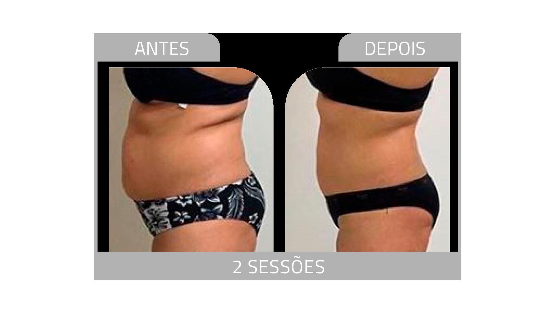 ANTES E DEPOIS LG 11.png