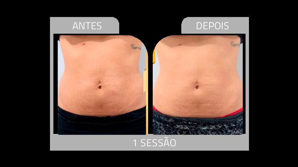ANTES E DEPOIS STRIORT 1.png