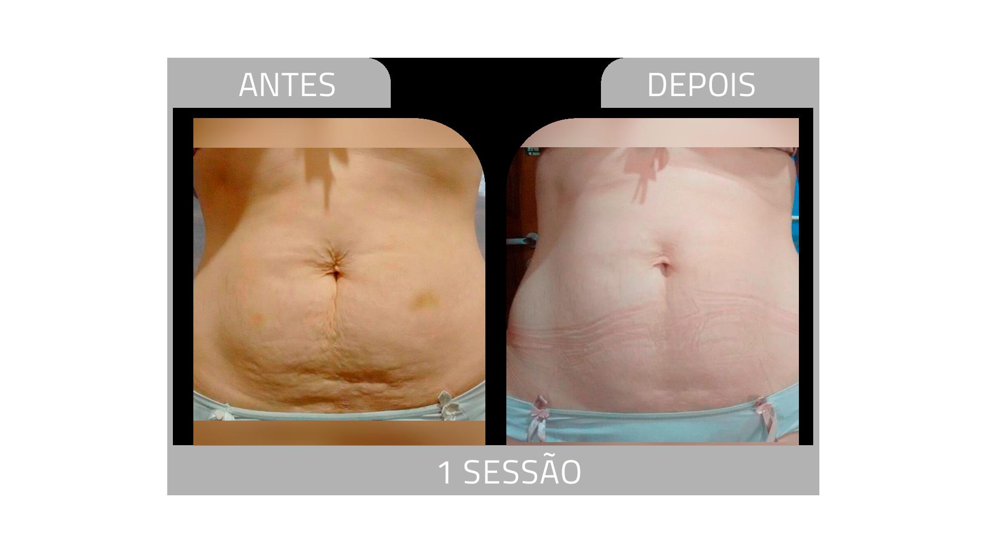 ANTES E DEPOIS STRIORT 2.png