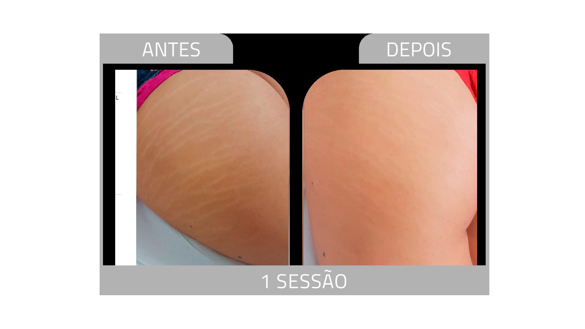 ANTES E DEPOIS STRIORT 10.png