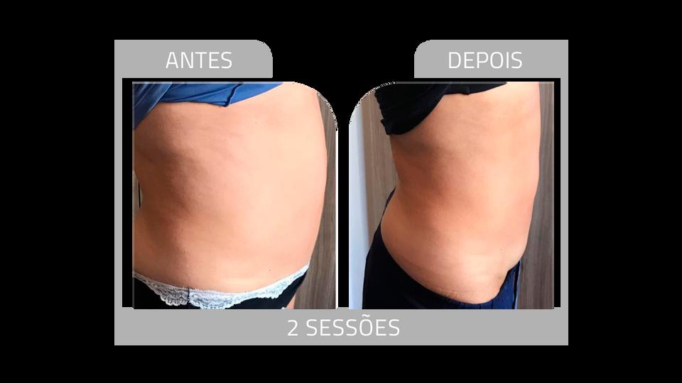 ANTES E DEPOIS FIRMEZ 3.png
