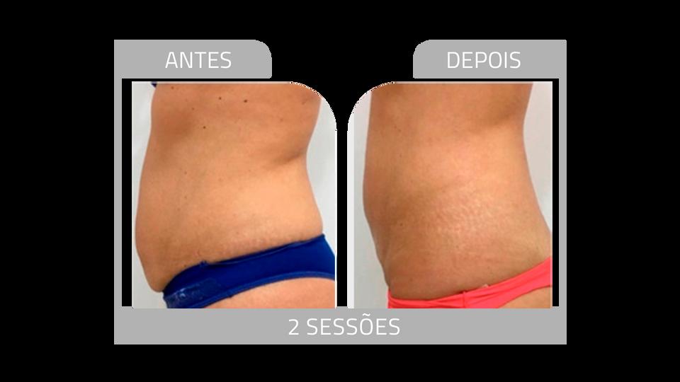 ANTES E DEPOIS FIRMEZ 9.png