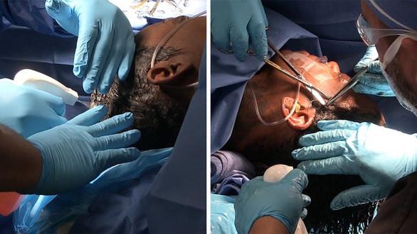 'Gorilla Glue hairdo' Tessica Brown miracle surgery to remove adhesive