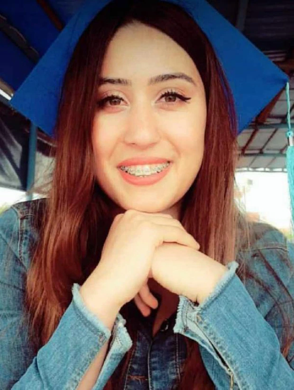 Student, 24, died from organ failure after going for NOSE JOB in Turkey