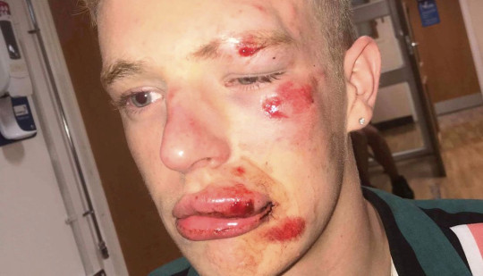 Gay man reveals battered face after homophobic attacker was spared jail