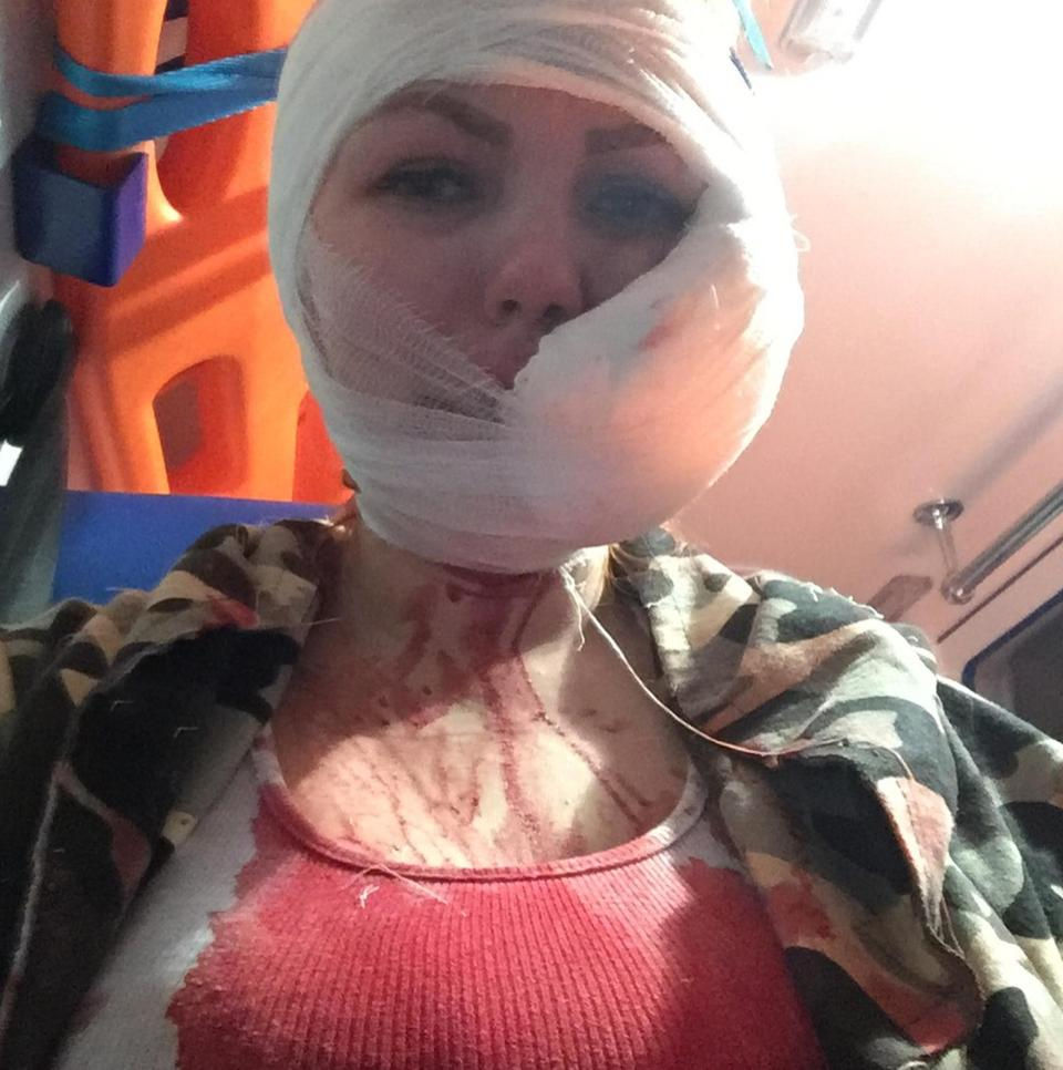 Video captures police violently shoving Cassandra