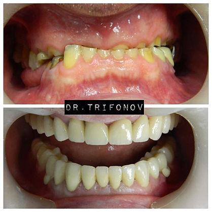 #Стоматолог #Стоматология #народныйартис