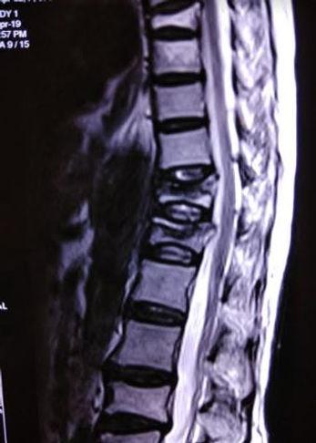 vertebral compression fracture.JPG