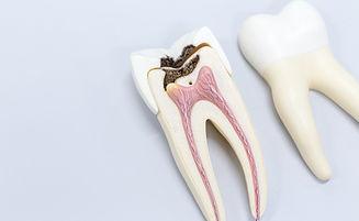 TRAITEMENT_endodontir_nice_dentiste.jpg
