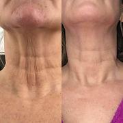 neck..jpg