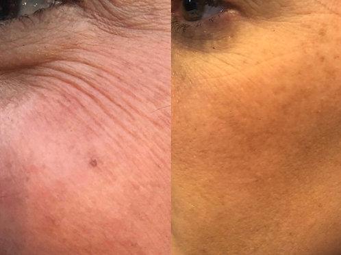 Cure 6 traitements rajeunissement contour des yeux + total eye 3 en 1