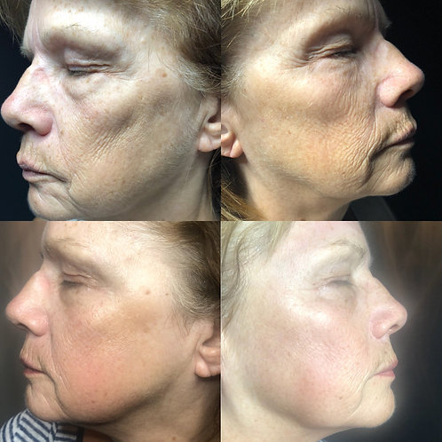 Cure endymed visage complet