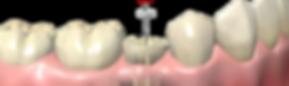 endodoncia2.png
