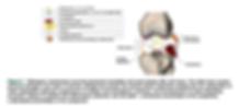 Post Traumatic Arthritis 2.PNG