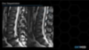 Cytokines MRI JB2ppt.PNG