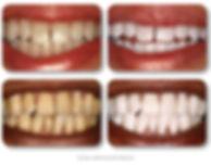 kor-whitening-before-after.jpg