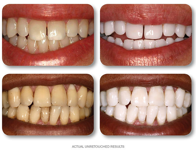 kor-whitening-before-after.jpg