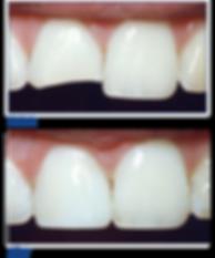 dental-bonding.png