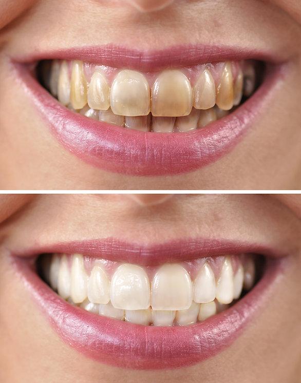 Фруороза,кафяви петна по зъбите,избелван назъбите, ICON,Дентална клиника в София,MGD dental clinic