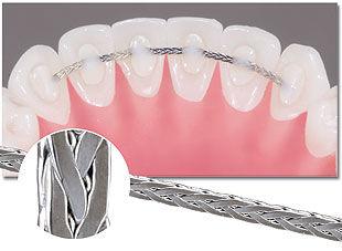 шиниране на зъбите,подвижни зъби,клатене на зъбите,пародонтоза,пародонтит