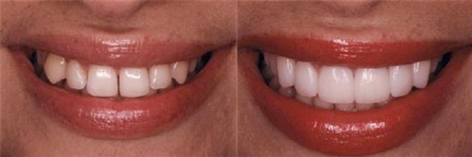 Бондинг на зъбите, Корекциян форма ,големина и цвят на зъбите чрез нанасяна на фотополимер- bonding MGD Dental clinic